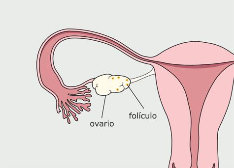 Diagrama del sistema reproductivo de la mujer. Se forman bolsas llenas de líquido en el ovario.